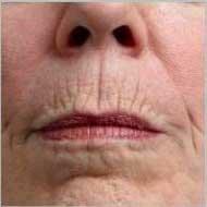 морщины над губой